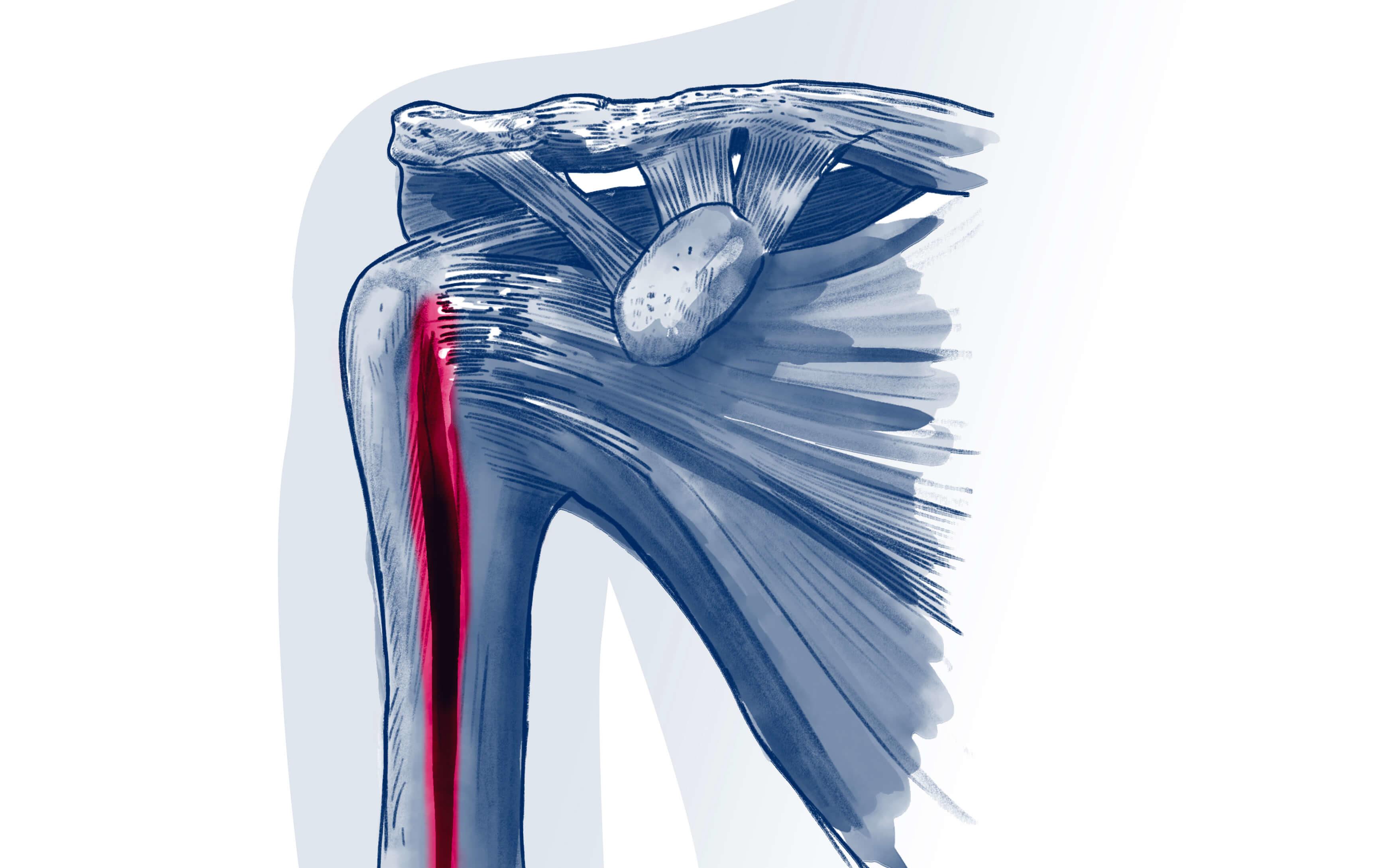Tendinopathie du long biceps - Pathologie   ISCO Strasbourg