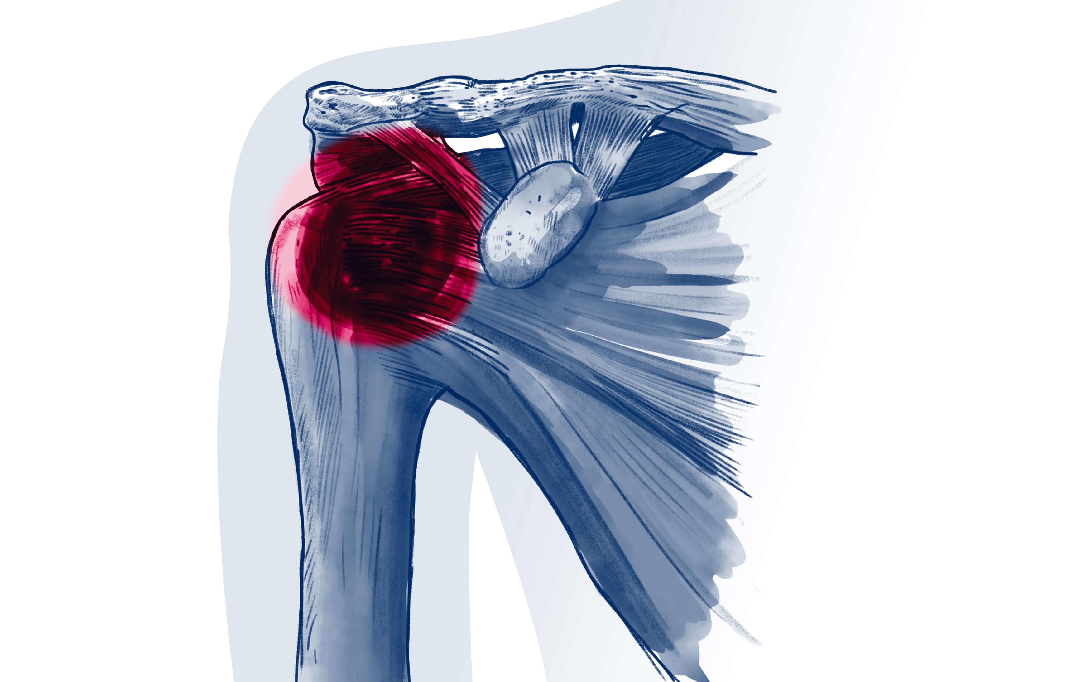 Capsulite rétractile - Pathologie   ISCO Strasbourg