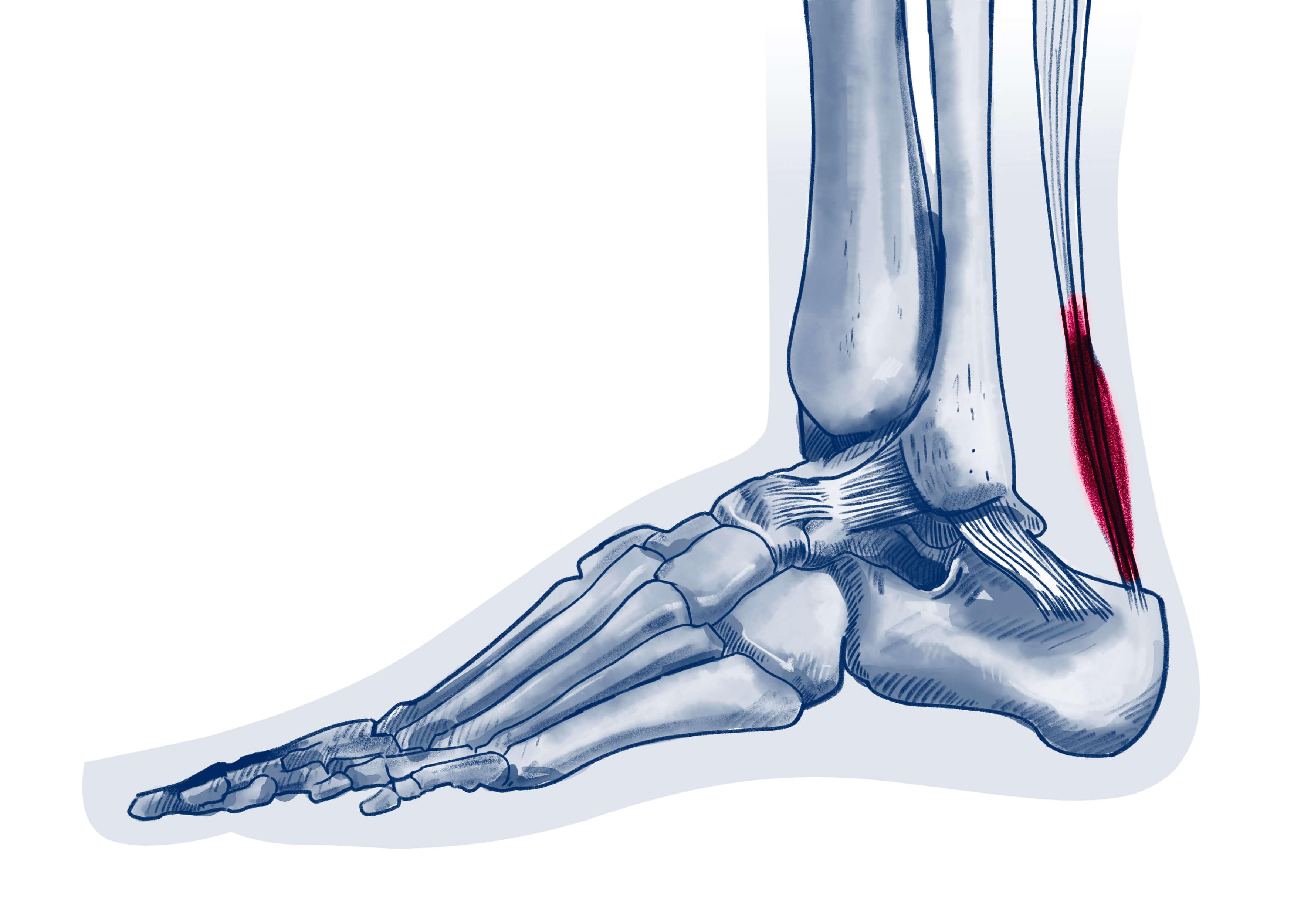 Tendinopathie du tendon d'Achille - Pathologie   ISCO Strasbourg